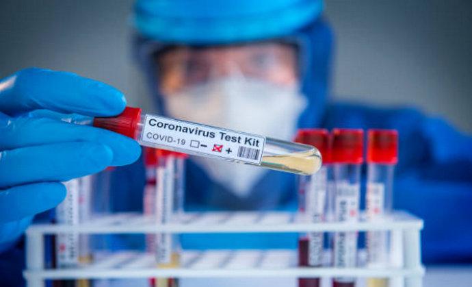 HNŽ: Testirano 345 uzoraka, 60 novozaraženih, 5 iz Stoca