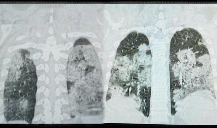 Sarajevski doktor: Ovo je CT pluća COVID pacijenta, mlad, nepušač i zdrav do sada